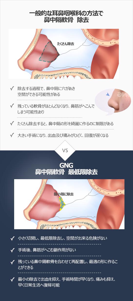 GNG鼻中隔湾曲症 矯正術